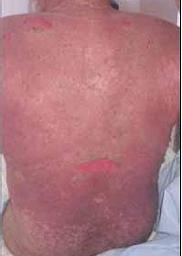 Necrólisis epidérmica tóxica inducida por carbamazepina