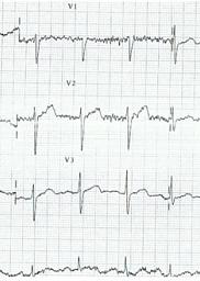 Electrocardiograma durante una hipotermia