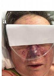 Púrpura fulminante aguda infecciosa secundaria a una herida por mordedura de perro