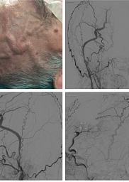 Fístula arteriovenosa temporal de origen traumático
