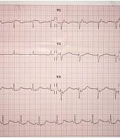 Hematoma cerebral masivo con alteraciones electrocardiográficas