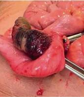 Intususcepción apendicular