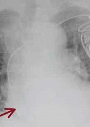 Temblor en el hombro: síndrome de Twiddler en un paciente con marcapasos bicameral