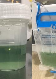 Orina verde tras rectosigmoidoscopia